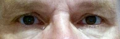 Augen natürlich schützen